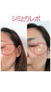 皮膚科にて2万円以下で顔全体のシミを無くす 前と後の様子を公開!